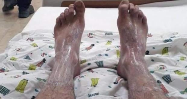 Ayağına sülfürik asit dökülen işçi işten atıldı