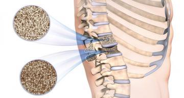 Kemik erimesi nasıl anlaşılıyor?